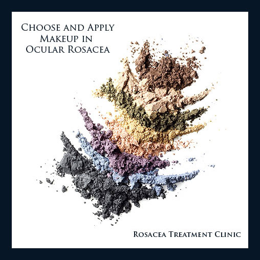 Contrary to advice in days gone by medical makeup for ocular rosacea can enhance quality  of life. Application technique can help protect against ocular rosacea symptoms.