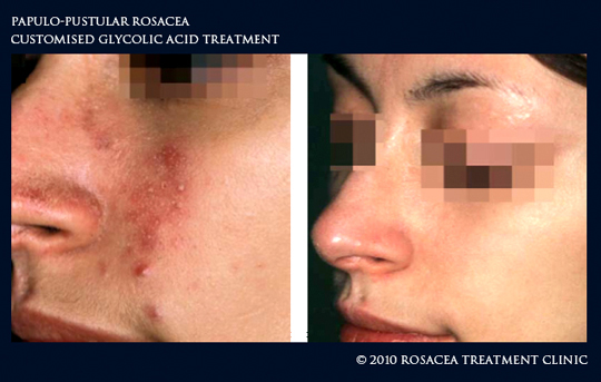 Glycolic Acid in Rosacea Treatment