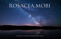 Rosacea Mobile Site